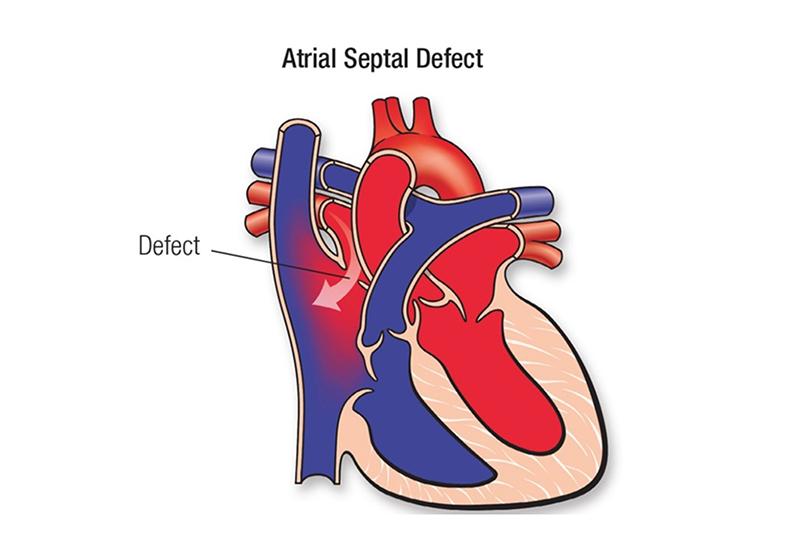 Transcatheter-ASD-Closure