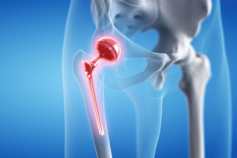 ผ่าตัดเปลี่ยนข้อสะโพก, ผ่าตัดเปลี่ยนข้อสะโพกเทียม, การผ่าตัดเปลี่ยนข้อสะโพกเทียม, ผ่าตัดเปลี่ยนข้อสะโพกเทียมซ้ำ